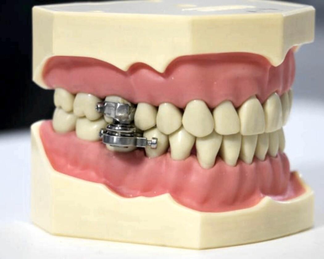 Forskere fra New Zealand og Storbritannia står bak DentalSlim Diet Control – en magnet som låser igjen munnen.