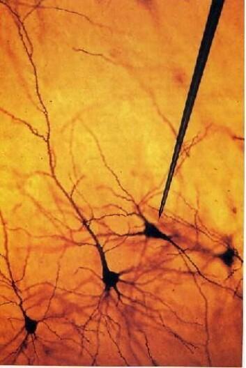 Ved å stikke tynne elektroder inn i nærheten av et nevron i hjernen, er det mulig å måle den elektriske aktiviteten som brukes til å styre muskelbevegelser.  Ill: UMB