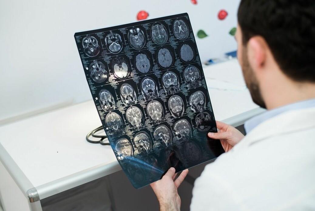 Studien viser at det ved hjelp av MR bilder av hjernen er mulig å identifisere pasienter i faresonen for kognitiv svikt som oppstår kort tid etter hjerneslaget.
