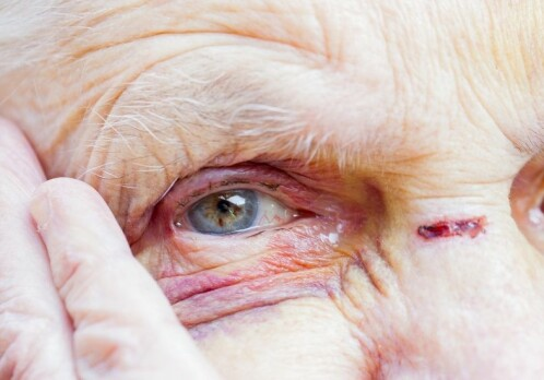 Abuse of the elderly is widespread