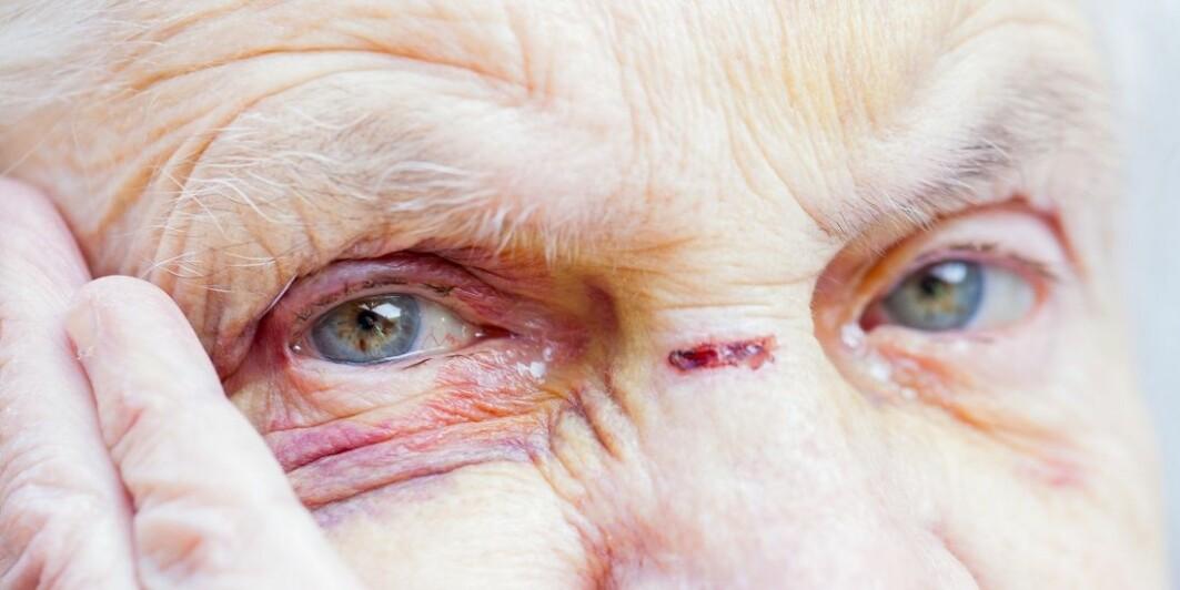 Overgrep mot eldre observeres av de fleste som jobber ved sykehjem.