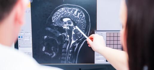 Hvorfor får mange demens etter hjerneslag?
