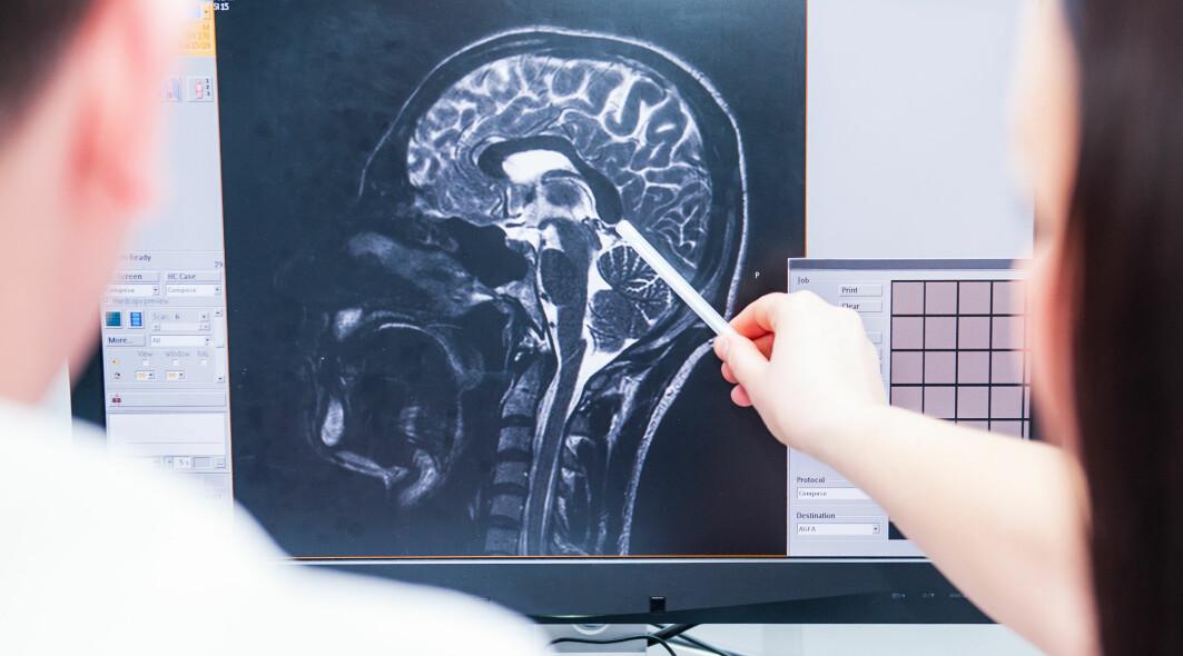 Kanskje er det en økt hjernealdring hos de slagpasientene som utvikler demens?