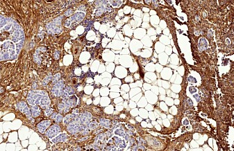 Cellegift kan gjøre kreften motstandsdyktig
