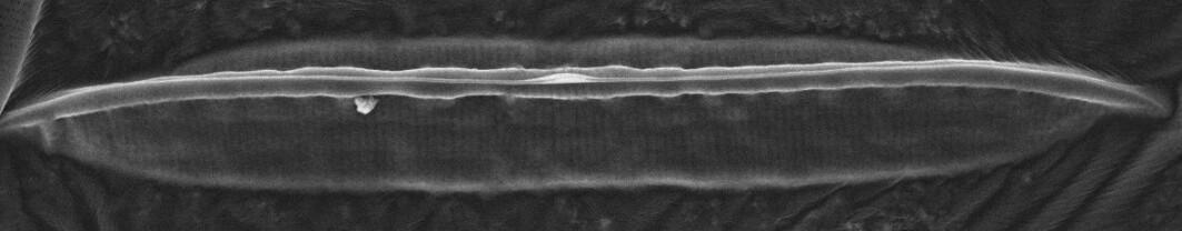 Et elektronmikroskopi bilde av utsiden av lokke. Den leppeformete strukturen som går på tvers av utsiden i midten kalles rafe, og er viktig for algen til å kunne bevege seg i habitatet.