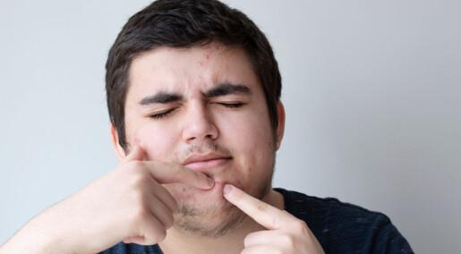 Noen bruker flere timer daglig på å nappe, plukke og klore på egen hud