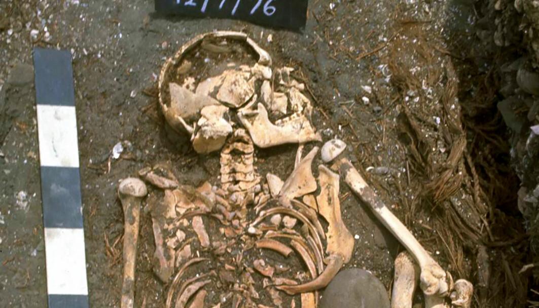 Denne gutten kan ha blitt angrepet av hai for mer enn 6000 år siden. Du kan se bildet i full størrelse i saken.