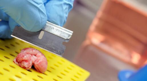 GHB-lignende stoff bremser skader i musehjerner etter blodpropp