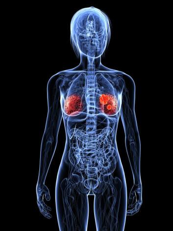 Hurtig oppdagelse av ondartede svulster er avgjørende for vellykket behandling av brystkreft. (Illustrasjon: iStockphoto)