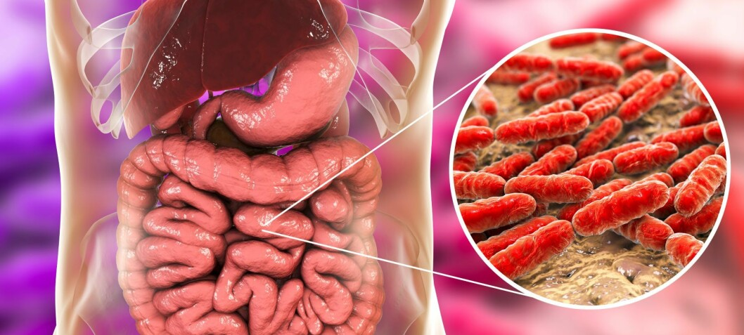 Friske tarmer er nå fullstendig kartlagt, så nå blir det lettere å sammenligne med syke