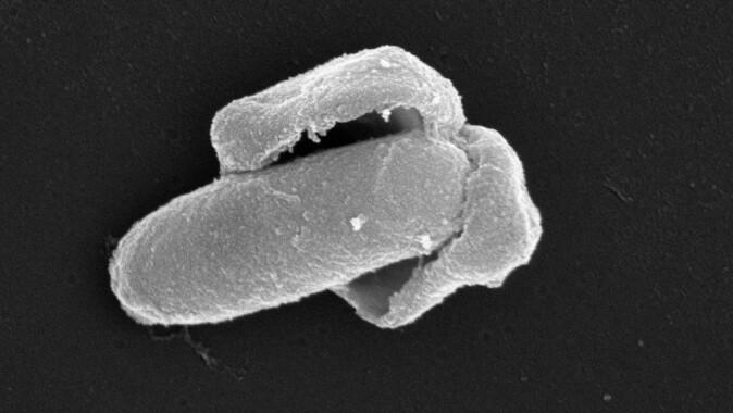 """Her ser vi en <span class="""" italic"""" data-lab-italic_desktop=""""italic"""">Bacillus licheniformis</span>-spore som våkner til live; sporeskallet sprekker og en voksende bakterie kommer ut."""
