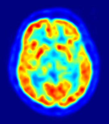 Positron-emisjons-tomografi av hjernen (Bilde: Jens Langer, Wikimedia Commons)