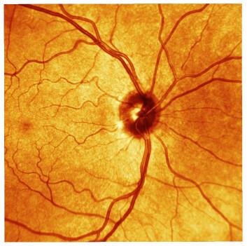 Retina, også kalt netthinnen. Dette er øyets lysfølsomme del. Her ses netthinnen til en person med normalt syn. (Foto: Science/AAAS)