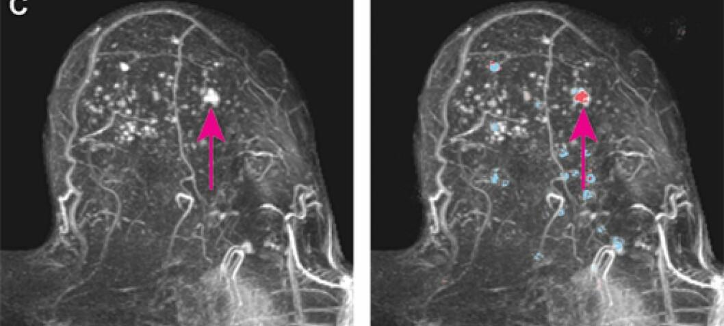 Svulster i bryster med tett vev er vanskeligere å oppdage. Kunstig intelligens kan forenkle jobben, viser ny studie.