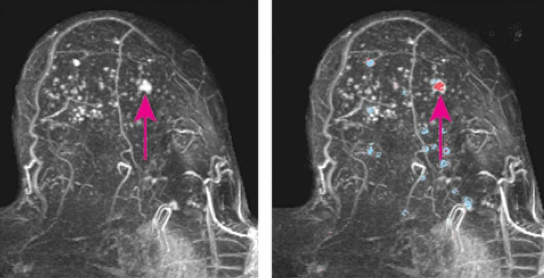 MR-bilde av et bryst med tett brystvev. Den rosa pilen viser en kreftsvulst. Bildet til høyre viser områder i brystet som den kunstige intelligensen har vurdert. Rød betyr høy sannsynlighet for kreft.
