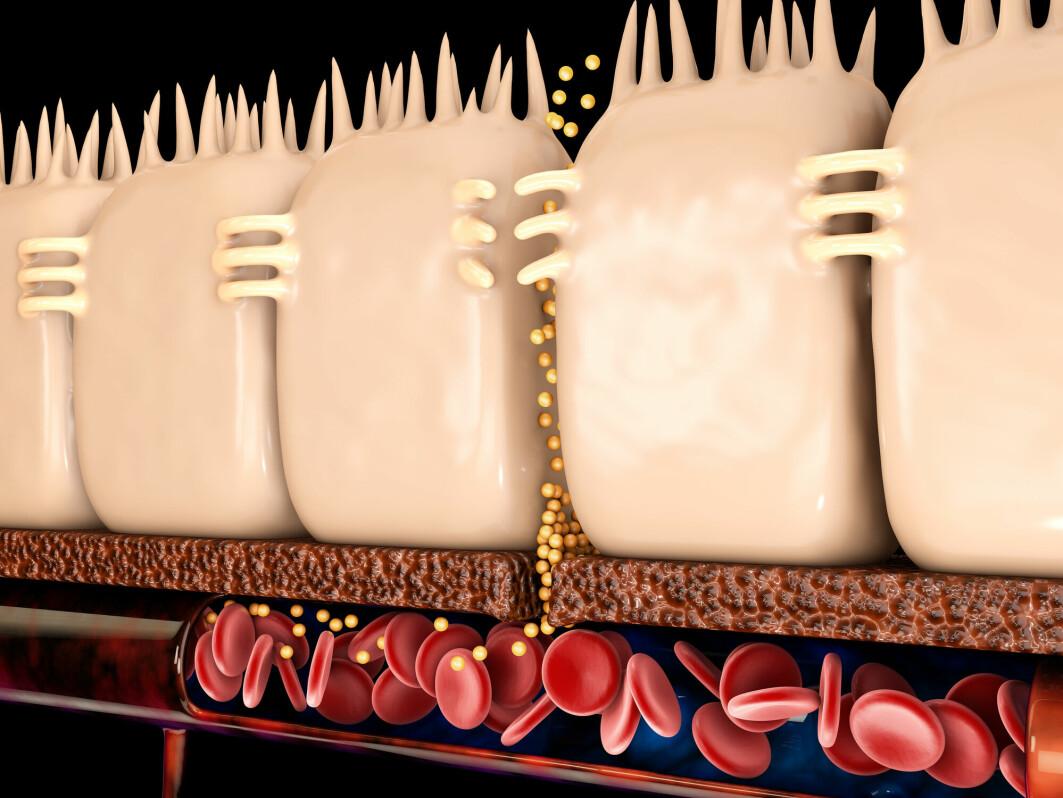 Tarmcellene mister grepet i hverandre, og fremmede stoffer siver igjennom tarmbarrieren og inn i blodet. Er slik lekkasje årsak til mange sykdommer?
