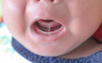 Forskere mener vi bør være mer forsiktig med klipping av tungebånd