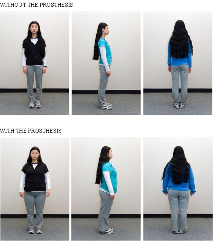 Skuespilleren som var del av forskningsgruppa -med og uten kroppsprotese. Forskerne fikk laget samme sett klær til henne også, bare i ulike størrelser. (Foto: Brent McFerran et. al./Journal of Consumer Research)