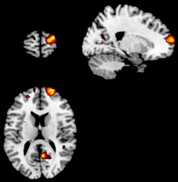"""""""Her kan du se hvilke områder i hjernen forskerne mener har sammenheng med evnen til selvrefleksjon. (Illustrasjon: Science)"""""""