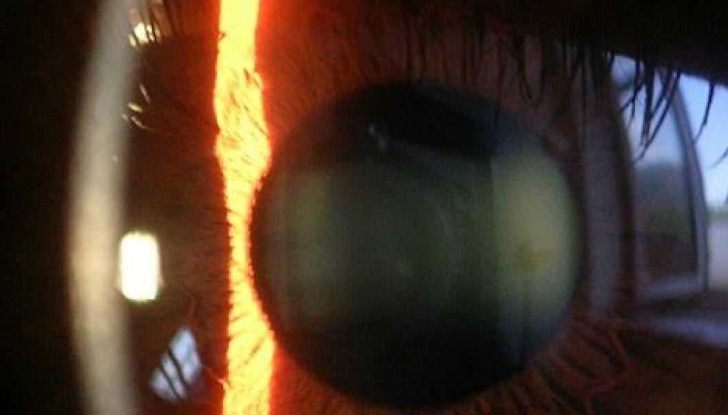 """""""Hornhinna er 0,5 -0,7 mm midt foran på øyet. (Foto: Wikimedia Commons)"""""""