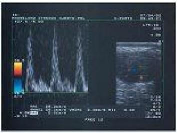 """""""Doppler-tester av blodårer og blodgjennomstrømming ble også brukt for å se på betennelse i akilles-senen."""""""