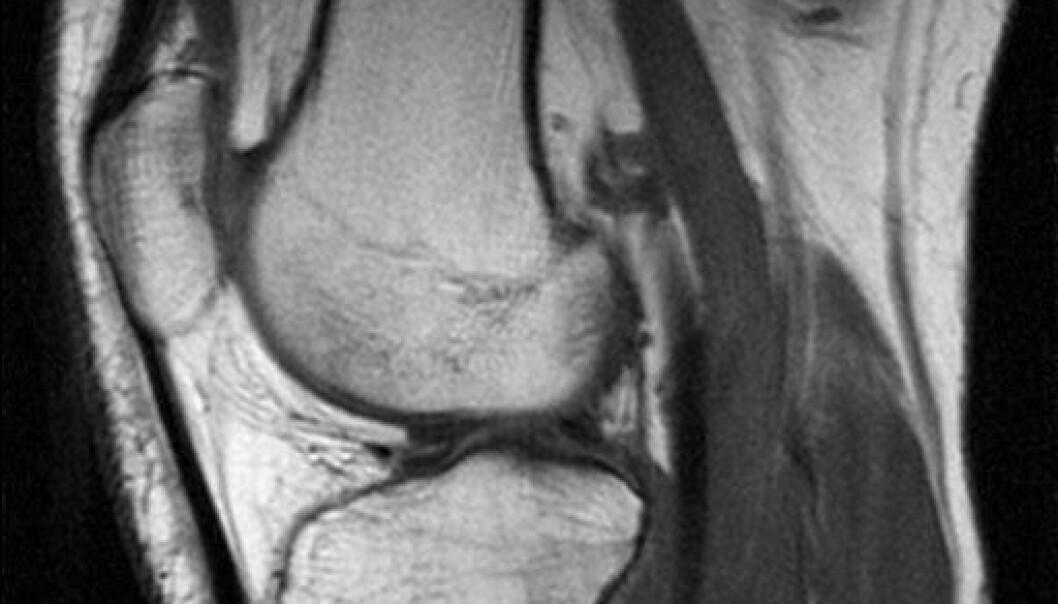 Apolloteknologi ble brukt til å utvikle MRI-apparater, et uvurderlig hjelpemiddel for dagens helsevesen. Dette MRI-bildet er av et kne. Foto: Wikimedia Commons.