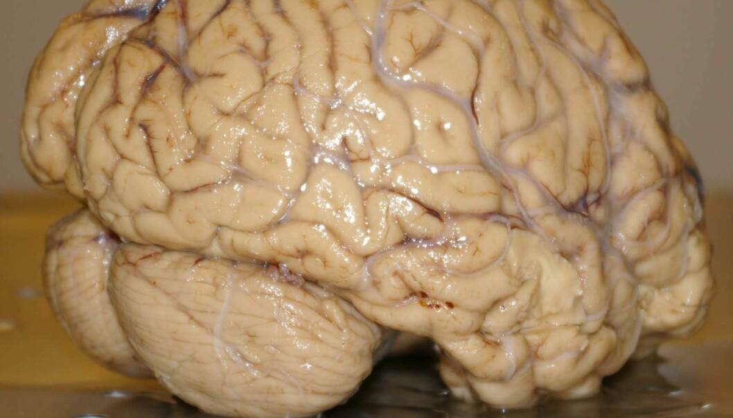 En liten forsker i hjernen