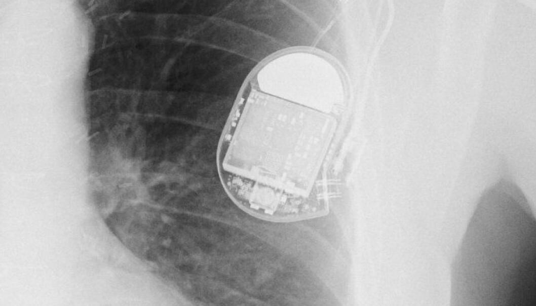 Røntgenbilde av pacemaker. (Foto: Wikimedia Commons, se lisens)