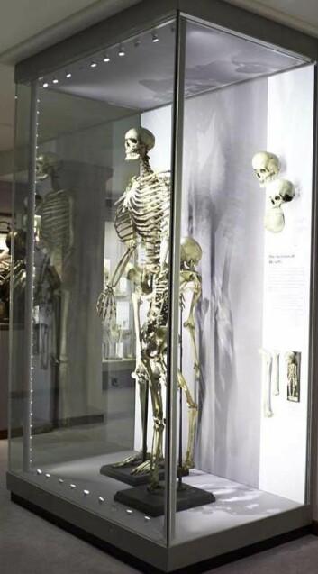 Den 2,50 meter høye irske kjempen Charles Byrne ville slett ikke havne i klørne på kirurger som lurte på hvordan han så ut inni. Men slik gikk det likevel. (© The Hunterian Museum at The Royal College of Surgeons)
