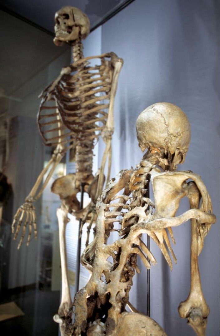 Under John Byrnes ruvende skjelett står Mr Jeffs. Han led av den sjeldne sykdommen Fibrodysplasia Ossificans Progressiva, som får muskler og vev i kroppen til å forvandle seg til bein. Til slutt blir pasienten sittende fast i et skjelett nummer to. (© The Hunterian Museum at The Royal College of Surgeons)