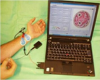 Prototype på sprøyten koblet opp mot en laptop som viser nålens plassering i vevet. (Foto: Håvard Kalvøy)