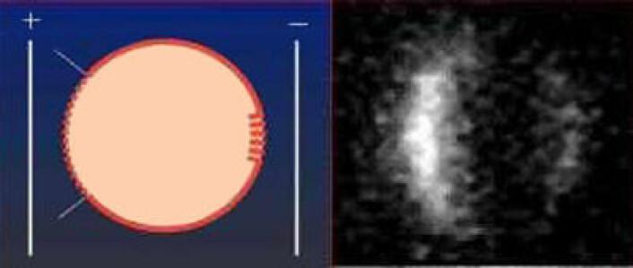 På første illustrasjon ses prinsippet bak elektrokemoterapi. Cellemembranen åpner seg på begge sider af cellen (mer eller mindre, alt etter elektronenes ladning). Det andre bildet viser en celle der kjemoterapien er trengt ind i store mengder, særlig på den siden hvor cellemembranen var mest åpen (Foto: Julie Gehl/videnskab.dk)