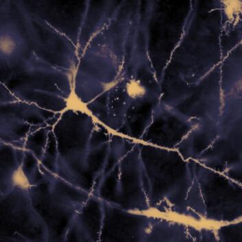 Neuroner i menneskehjerne (Illustrasjonsfoto: MethoxyRoxy, se lisens)
