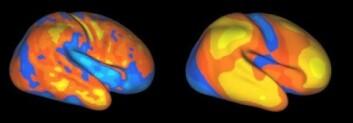 """""""Områder som utvider seg i hjernebarken hos mennesker i barndommen (til venstre) matcher områder som er forskjellige når du sammenligner menneske- og apehjerne (til høyre). Gule områder utvider seg mest/er mest forskjellige, etterfulgt av oransje, rødt, blått og lyseblått. (Foto:Washington University School of Medicine)"""""""