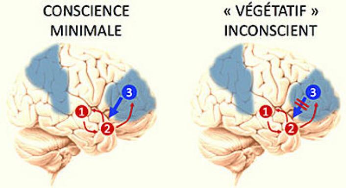 I den minimalt bevisste pasienten kan hjerneområdene 2 og 3 utveksle opplysninger. Det kan de ikke i den vegetative pasienten – her foregår kommunikasjonen bare den ene veien. (Grafikk: Université de Liège)