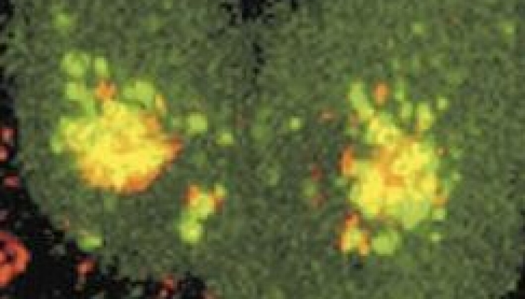 Kaster lys over cellenes fordøyelse