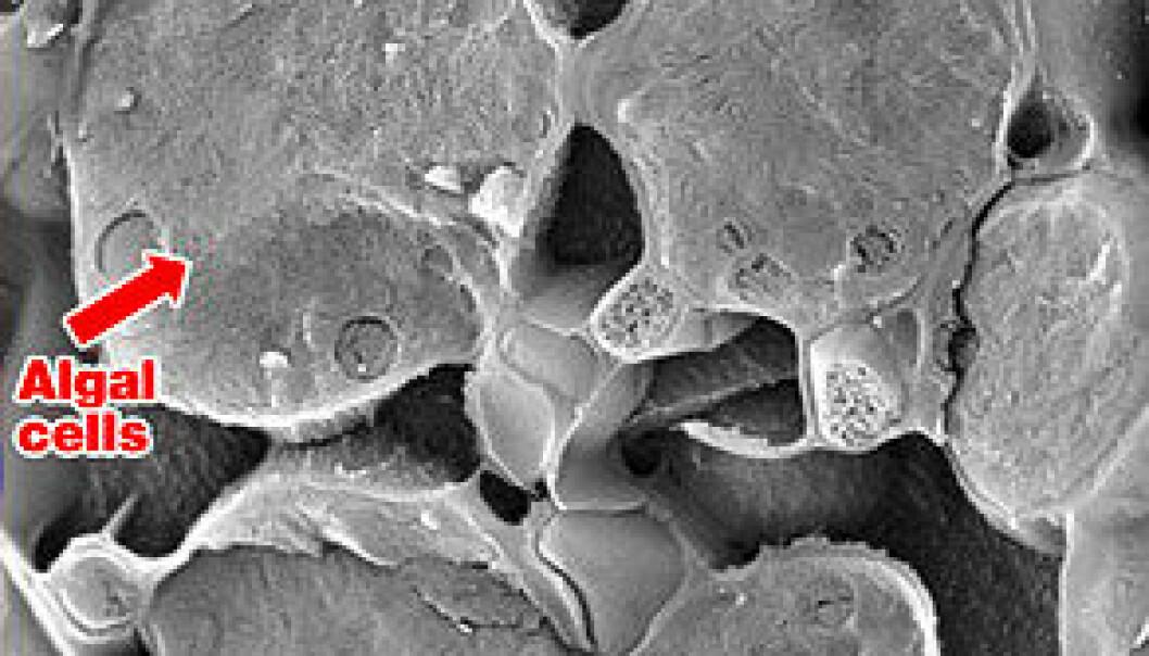 """""""Mikroskopbilde av lav."""""""