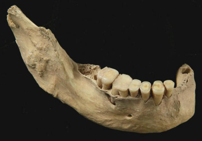 Underkjeve funnet i Tianyuanhulen sørvest for Beijing i Kina. Den tilhører et tidlig moderne menneske som levde for 40 000 år siden. Kjemiske analyser av funnet viser at fisk var en viktig del av dietten. (Hong Shang, Chinese Academy of Science, Beijing)