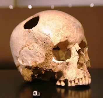 I det gamle Egypt laget man et hull i kraniet (en trepanering) når folk gjentatte ganger ble rammet av migreneanfall. Og det er vitnesbyrd om at noen overlevde inngrepet. Historien forteller at man gjorde det for å slippe ut de onde åndene.