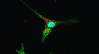 Følger stamceller i hjernen