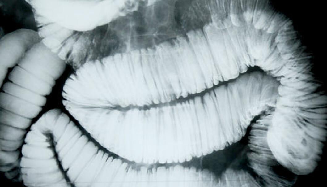 Røntgenbilder av mage. Foto: Janne Veirud/HiO