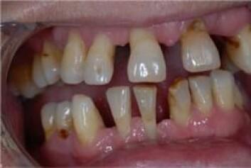 Periodontitt angriper beinet som tennene er festet i og kan føre til at en eller flere tenner løsner.