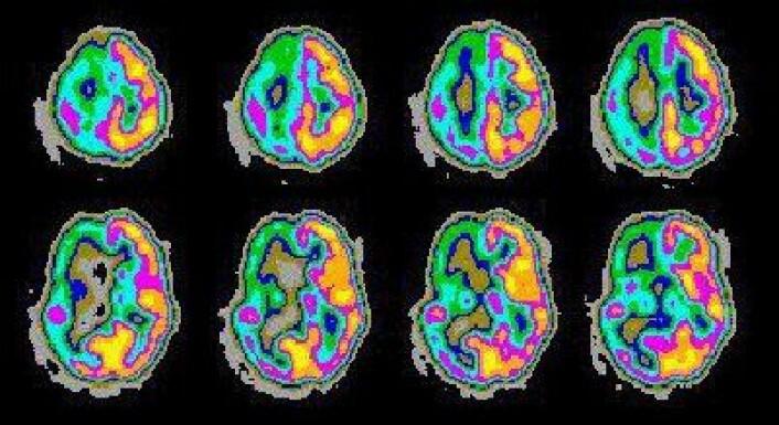 Bildet viser PET scanning av mønstre i hjernen relatert til epilepsi. (Foto: NASA)