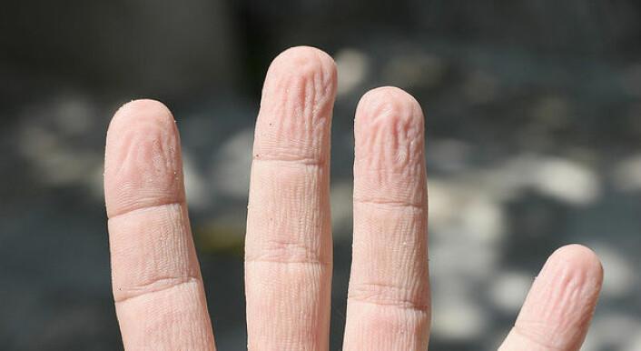 Tar man oppvasken for hånd kan man oppleve at fingrene får rynker av vannet. (Foto: Bruce (Flickr))