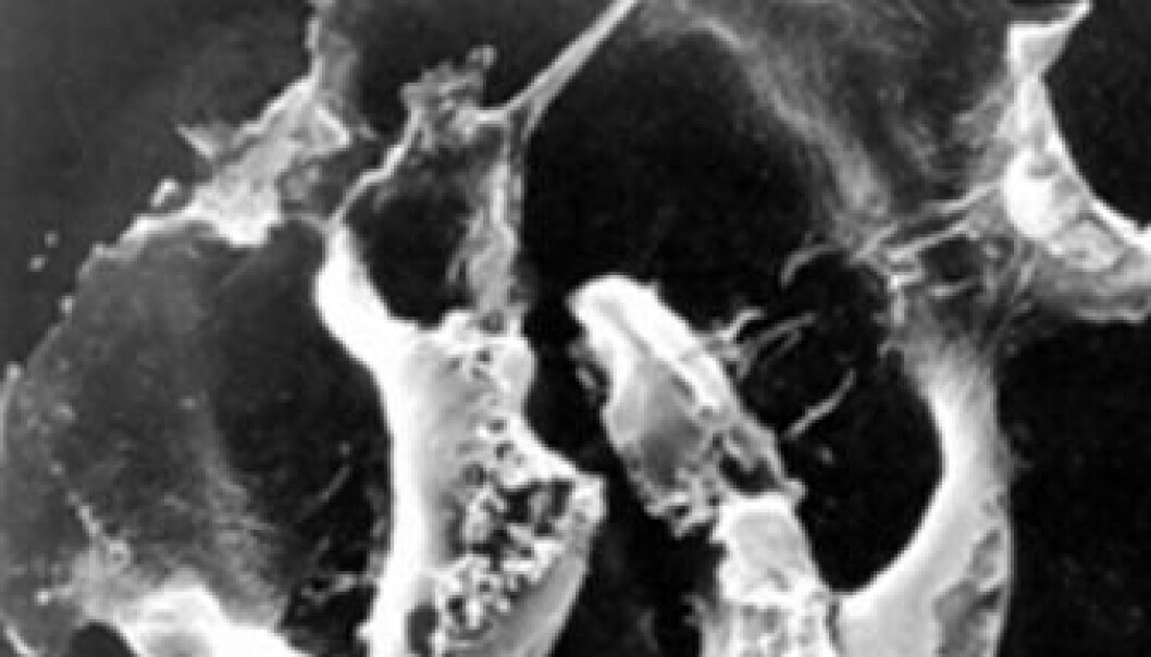 Sprenger kreftceller