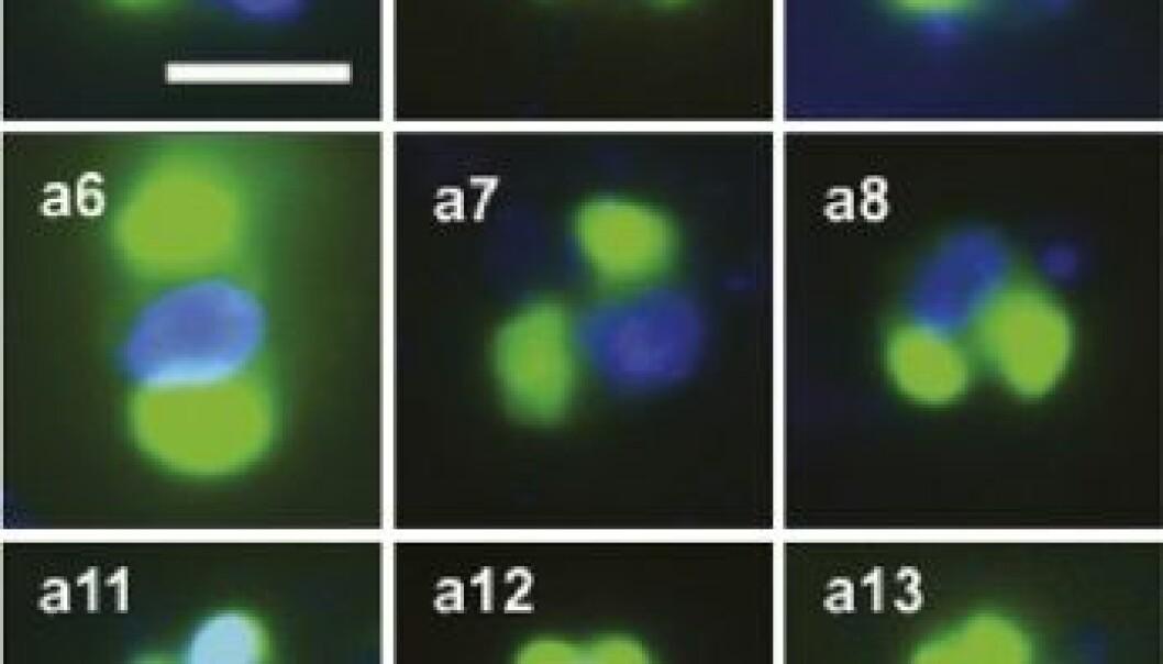 Rappemonadene (Foto: Kim, Harrison, Sudek et al. PNAS 2010)