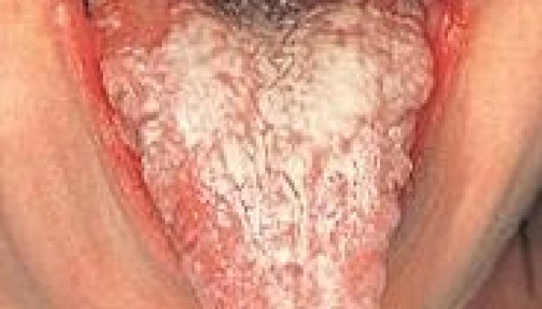 Pasienter med autoimmun binyrebarksvikt har kronisk sopp i munnen. I tillegg til at soppen er plagsomt, utvikler ti prosent av disse pasientene kreft i munnhulen. (Foto: The Free Dictionary)