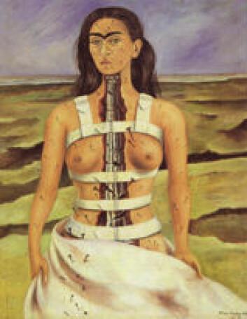 """Frida Kahlo: Brukken ryggrad."""