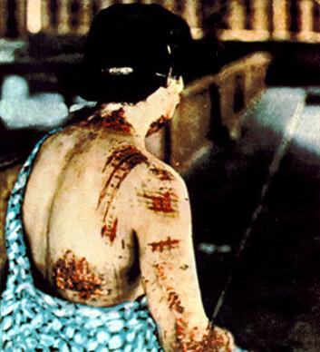 Offer for atombombe, Japan 1945. Pasientens hud er brent etter det mørke mønsteret på kimonoen som ble båret da bomben eksploderte. (Foto: US National Archives)