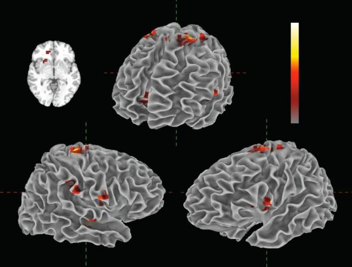 """""""Illustrasjonen viser de ulike områdene i hjernen som aktiveres ved musikklytting. (Illustrasjon: Florida Atlantic University)"""""""